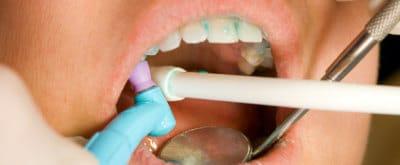 higiena burnos