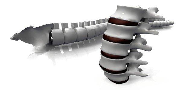 Stemplės išvarža: simptomai, gydymas, pašalinimas chirurgijoje   Kompetentiškai apie sveikatą Move&Flex